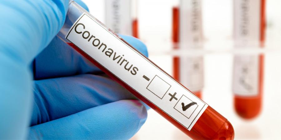 Közérdekű információ! Mit kell tudni a koronavírusról?